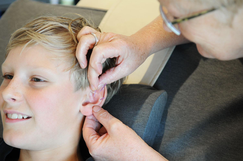 Akupunktur i Jelling ved Vejle